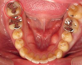 むし歯C2治療前