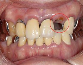 むし歯C3治療前