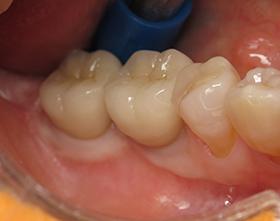 むし歯C4治療前