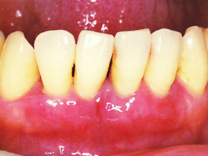腫れている歯ぐき
