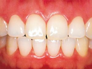正常な歯ぐき
