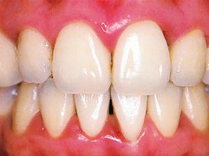 歯周病にかかった歯ぐき