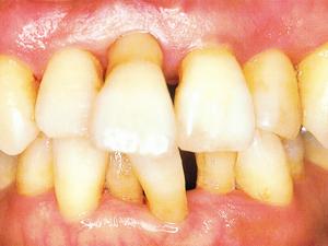 歯ぐきが長く見えるようになった画像